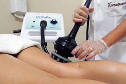 Celulite e Fibrose